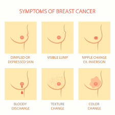 mri guided biopsy breast breast cancer misdiagnosis lawyer ny medical malpractice attorneys