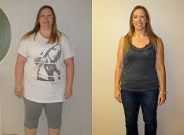 st louis weight loss gastric sleeve lap band testimonials