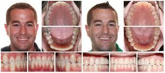 brier creek orthodontics health raleigh nc weddingwire