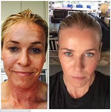 chelsea handler u0027s face transforms after profractional laser