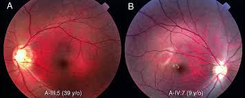 Night Blindness Information Novel Cacna1f Mutations In Japanese Patients With Incomplete