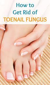 best 25 white toenail fungus ideas on pinterest white on