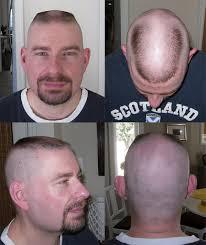 horseshoe haircut sean new horseshoe flat comp 2012 horseshoe flattop hor flickr