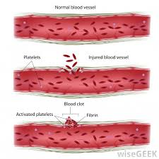 What Does Light Colored Stool Mean What Causes Blood Clots In Stool With Pictures