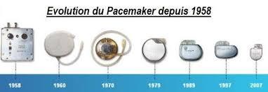 pacemaker chambre cardiologie stimulateur cardiaque ou pacemaker