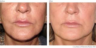 intense pulsed light review rejuvenate your skin with intense pulsed light ipl photofacials
