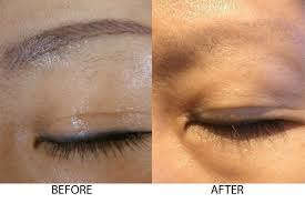 tattoo removal laser dr al rustom skin u0026 laser centre