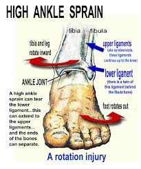 Ankle Anatomy Ligaments A First Running Injury Incoming The U201canterior Annular Ligament