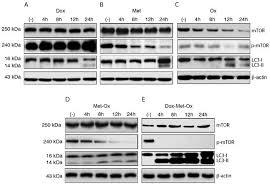 targeting metabolic remodeling in triple negative breast cancer in