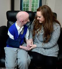 How Tall Is Jimmy Barnes Wellwishers Raise Money For Katie Cutler Who Started Alan Barnes