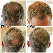 before and after thinning mens haircut hair loss thinning awesome hair thinning and hair loss what s a