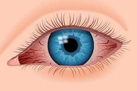 what causes eyes to be sensitive to light 17 red eye causes and how to treat red eyes
