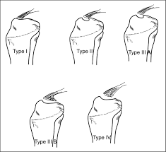 tibial spine avulsion fractures current concepts and technical