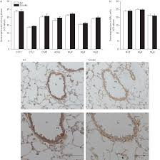 muscarinic receptor subtype specific effects on cigarette smoke