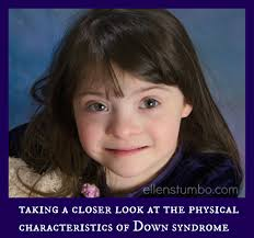 understanding the relation between face shape and hairstyle a closer look at the physical characteristics of down syndrome