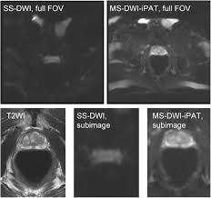 segmented diffusion weighted imaging of the prostate application