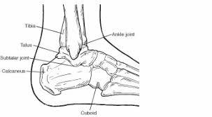 Subtalar Joint Fracture Fractures Of The Calcaneus Heel Bone Fractures Acfas