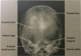 townes method for skull 30 degrees caudal radiographs