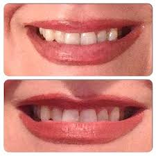 prime time smile teeth whitening light review before after photos prime time smile active blue teeth