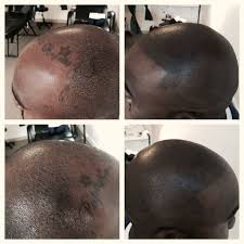 pics of scalp micropigmentation on people with long hair 32 best scalp micropigmentation images on pinterest scalp