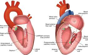 Heart Wall Anatomy Brain Emboli After Left Ventricular Endocardial Ablationclinical