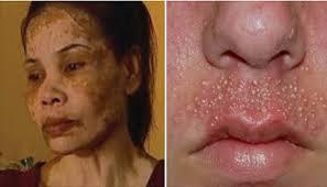 Pemutih Ql waspada berikut daftar krim yang berbahaya bagi wajah gudang