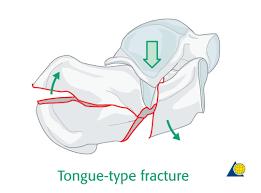 Os Calcaneus Calcaneus Decision Displaced Fractures Body Fractures Ao