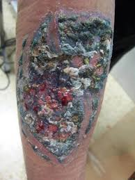 infected tattoo dream meaning tattoo infections how to spot them and treat home page new trend