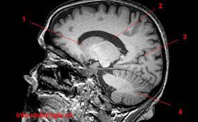 Image Of Brain Anatomy Atlas Of Brain Mri Anatomy
