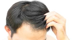 images of hair early baldness greying of hair ups risk of heart disease in men