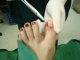 operative removal of ingrown toenails u2013 how it is being done
