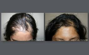 hair transplant for black women neograft hair transplant results with automated fue hair restoration