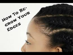weak hair edges three tips to revive those thinning edges third articles and
