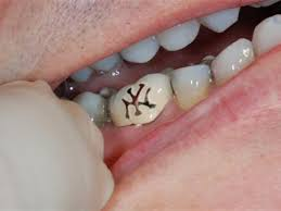 tooth tattoos anyone doin u0027 them would you tattoo your teeth
