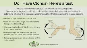 Muscle Spasms Versus Muscle Twitching by What Is Clonus Causes Tests And Treatments