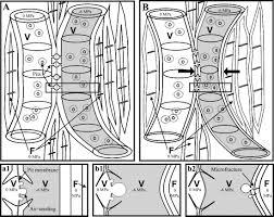 do xylem fibers affect vessel cavitation resistance plant