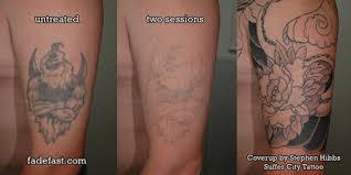 tattoo fade fast