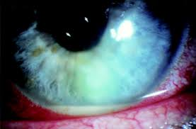 corneal infiltration after recurrent corneal epithelial erosion