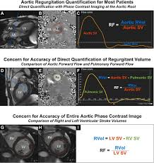 evaluation of aortic regurgitation with cardiac magnetic resonance