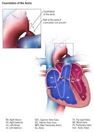Anatomy Of The Heart Lab Facts About Coarctation Of The Aorta Congenital Heart Defects