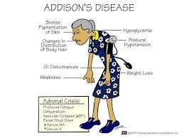 170 best diseases for review images on pinterest medicine