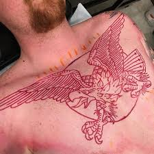 what is red tattoo laser removal process remove tattoo without