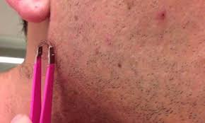 it looks like a simple ingrown hair within his chest remedies to expose ingrown hair to remove them