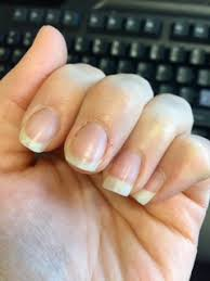 horizontal lines on your nails health anxiety anxiety central