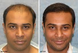 hairline restoration for black men hair transplant nyc hair restoration new york