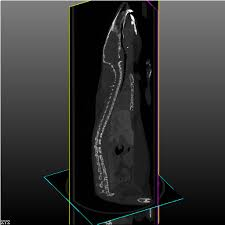 3d Medical Software 3d Analysis Scan Reconstruction Evaluation Visualization