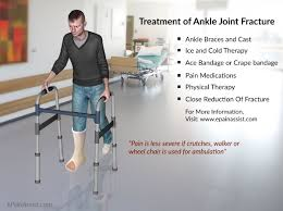 Fibular Avulsion Ankle Joint Fracture Types Classification Symptoms Treatment Recovery