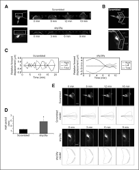 p38γ promotes breast cancer cell motility and metastasis through