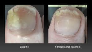 laser nail fungus removal laser medspa treatments atlanta