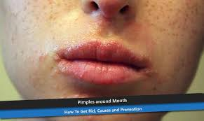 Causes Of Blind Pimples Pimples Around Mouth How To Get Rid Causes And Prevention